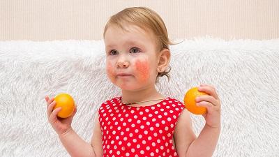 Психологічні причини атопічного дерматиту у дітей