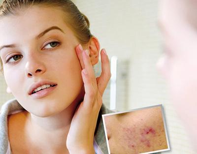 Косметологічні процедури, які допоможуть впоратися з акне (і рубцями після)