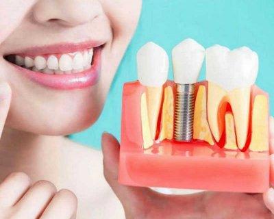 5 причин, за якими потрібно обов'язково відновлювати відсутні зуби